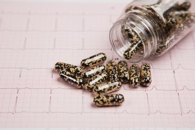 Medisch rapport en cardiogram