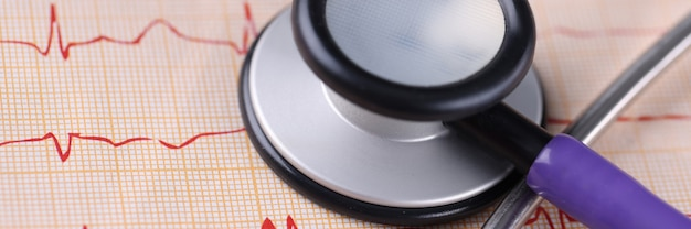 Medische apparatuur stethoscoop liggend op elektrocardiogram close-up ziekten van cardiovasculaire