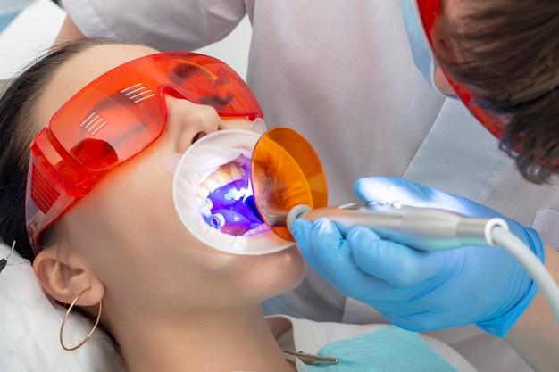 Meisje bij onderzoek bij de tandarts. behandeling van carieuze tand. de dokter gebruikt een spiegel op het handvat en een boormachine; de medische broer werkt met een polymerisatielamp om de vulling te verharden