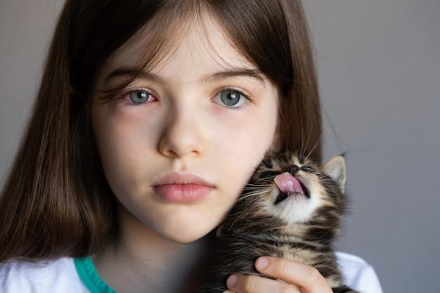 Meisje dat een katje houdt. allergie voor kattenhaar, rode ogen