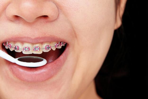 Meisje dat met steunen op tanden glimlacht