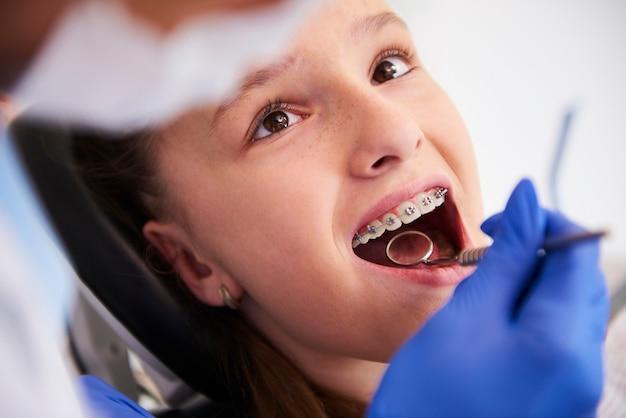 Meisje met beugel tijdens een routine, tandheelkundig onderzoek
