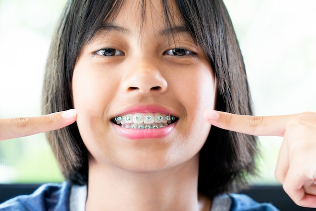 Meisje met tandsteunen glimlachend en gelukkig