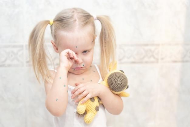 Meisje ziek met waterpokken op kleur achtergrond met giraf bij de hand