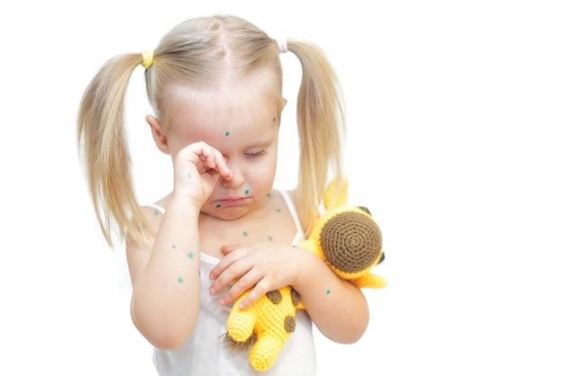 Meisje ziek met waterpokken op wit