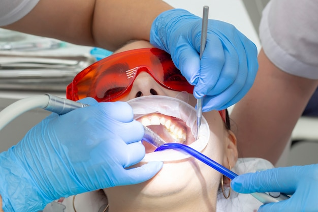 Meisjespatiënt bij de receptie bij de tandarts. behandeling van carieuze tand. het meisje ligt met open mond op de tandartsstoel. een tandarts en zijn assistent behandelen een tand