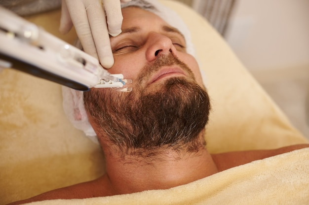 Mens die mesotherapie met hoge frequentie ontvangt bij schoonheidssalon. procedure voor huidverjonging concept