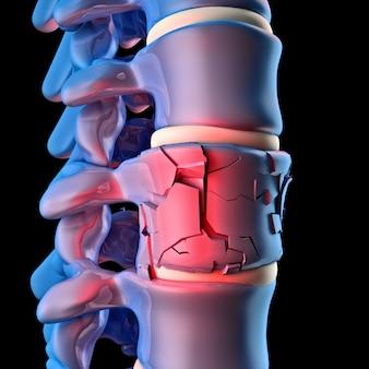 Menselijk spinale been 3d