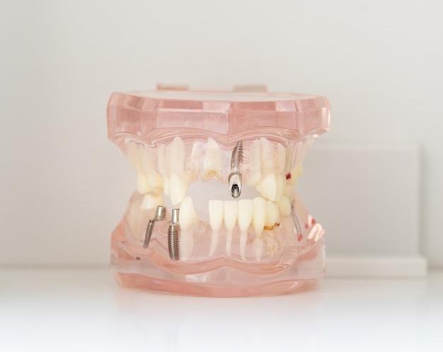 Menselijk tandimplantaat. tandheelkundig begrip. menselijke tanden of kunstgebitten.