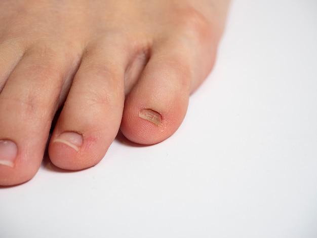 Menselijke voet op een witte achtergrond met nagelproblemen.