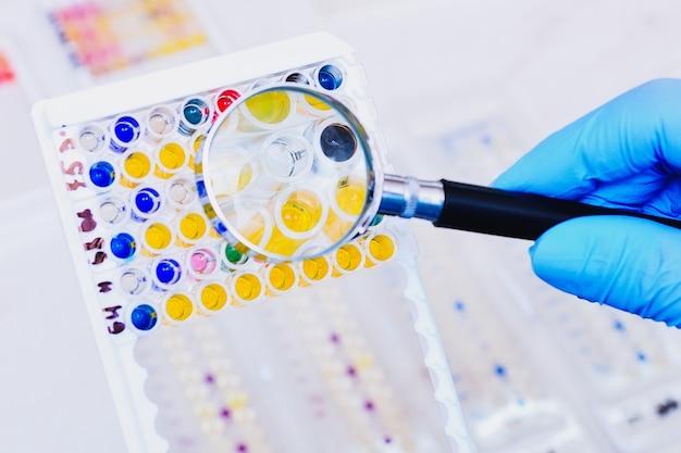 Microbiologisch laboratorium. schimmel- en schimmelculturen.
