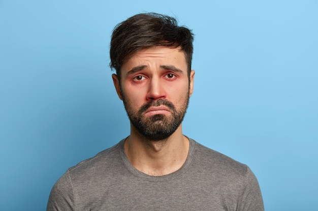 Miserabele, ontevreden man heeft een zieke blik, rode gezwollen ogen, grijnzend gezicht, lijdt aan conjunctivitis, seizoensgebonden allergie, poseert tegen een blauwe muur. mensen, ziekte, gezondheidsproblemen concept.