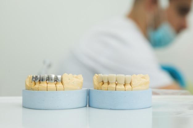 Mock-kaak op de tafel bij de tandarts