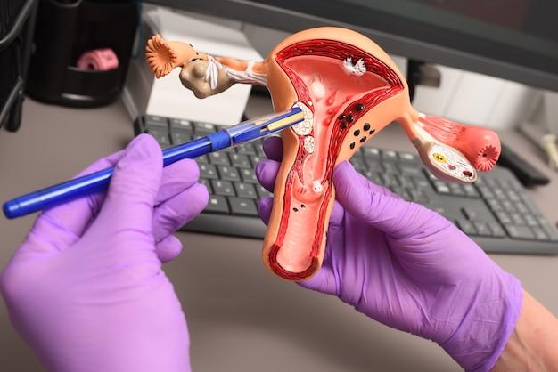 Model van een menselijke baarmoeder in de handen van een gynaecoloog