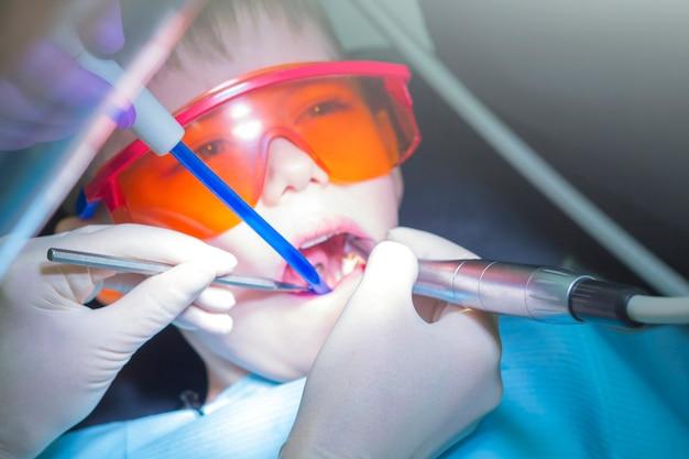Moderne cariësbehandeling voor een kind. tandheelkunde voor kinderen. kleine jongen in beschermende oranje bril. procesbehandeling wortelkanaal of cariës. reiniging en preventie van tanden.