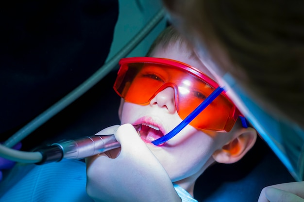 Moderne cariësbehandeling voor een kind. tandheelkunde voor kinderen. kleine jongen in beschermende oranje bril. procesbehandeling wortelkanaal of cariës.