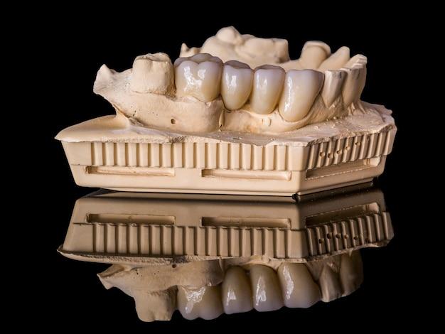 Monolithische zirconia-restauraties geïmplanteerd ondersteund met de keramische belasting in vestibulair