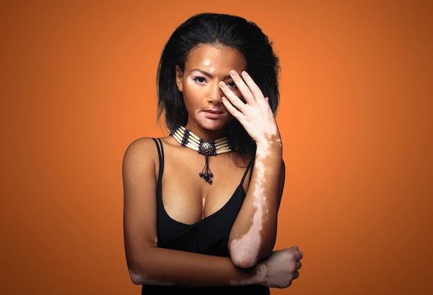 Mooi afrikaans meisje in studio met huidproblemen vitiligo
