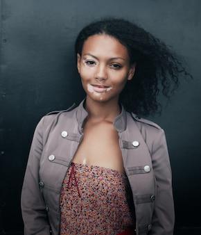 Mooie jonge brunette vrouw met vitiligo ziekte