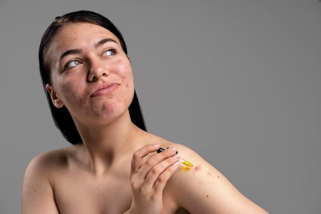 Mooie vrouw die haar acne met vertrouwen toont
