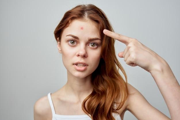 Mooie vrouw in wit t-shirtpuistje op de problemen van de gezichtshuid