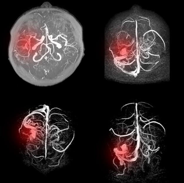 Mra van de hersenen vertoont bijna totale occlusie