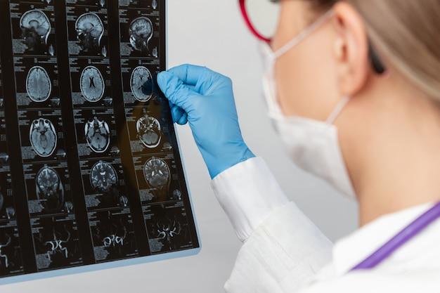 Mri-scan van de hersenen door computertomografie in de handen van de arts