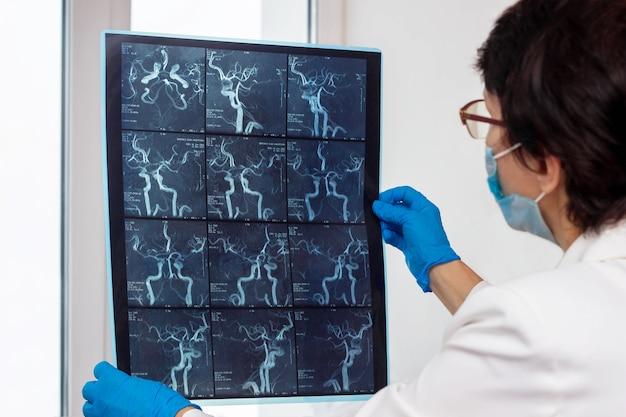 Mri-scan van de slagaders en bloedvaten van de hersenen door computertomografie in de handen van de arts
