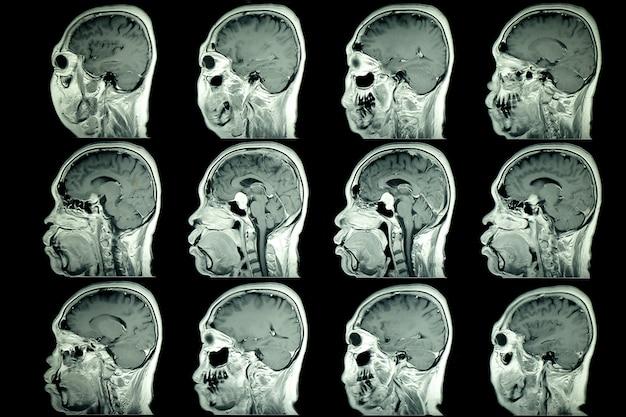 Mri-scan van het brein van de patiënt