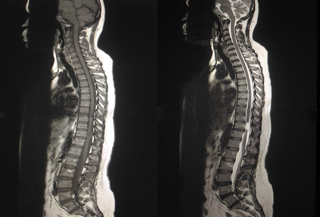 Mri. thoracale wervelkolom 2view toont intradural extramedullaire massa