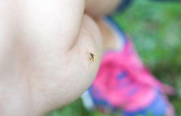 Mug op het been. insect bijt mensen. zomer problemen.