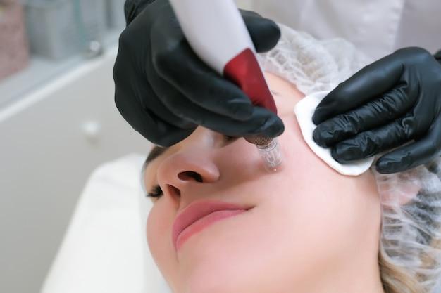 Naald mesotherapie. cosmetologist voert mesotherapie met naalden uit op het gezicht van een vrouw. mooie vrouw die microneedling verjongingsbehandeling krijgt. naald tillen