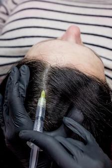 Naald mesotherapie. schoonheidsspecialist maakt injecties in het hoofd van de vrouw. versterken het haar en hun groei.