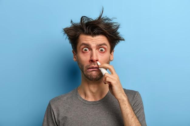 Neusbehandeling en koude symptomen concept. beschaamde man heeft rode ogen, druipt verstopte neus met spray, voelt zich misselijk, heeft rommelig haar, blijft thuis, geïsoleerd op blauwe muur. medische benodigdheden