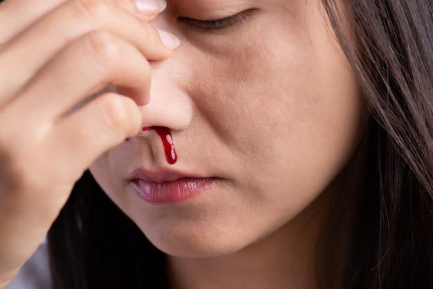 Neusbloeding, een jonge vrouw met een bloedneus