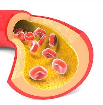 Normale slagader met rode bloedcellen