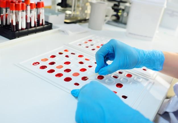 Onderzoeker bacteriologisch of genetisch laboratorium in rubberen handschoenen maakt een bloedtest close-up