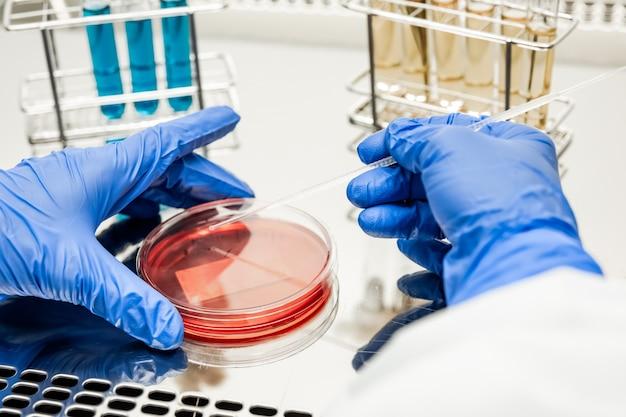 Onderzoeker die werkt met petrischaal in een laboratorium voor microbiologie.