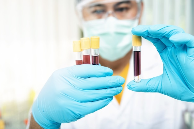 Onderzoekers vergelijken bloedmonsters van patiënten die met de ziekte zijn geïnfecteerd in het laboratorium.