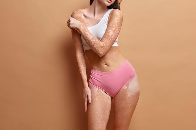 Onherkenbare vrouw heeft perfect figuur vitiligo huid raakt schouder aan accepteert zichzelf zoals ze is heeft dermatologische problemen of ziekte