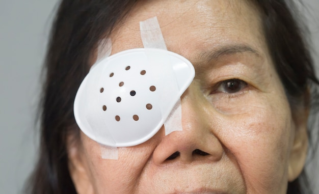 Oogbescherming na cataractoperatie.