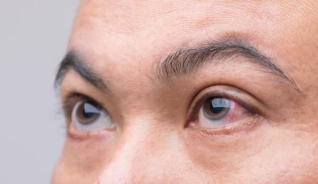 Oogirritatie concept: macro rood oog van de mens, conjunctivitis oog of na het krijgen van stof