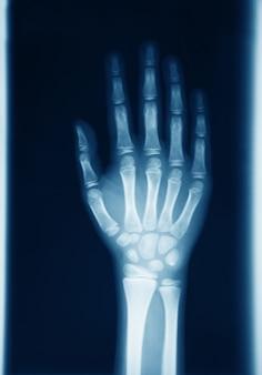 Originele radiografie van menselijke hand