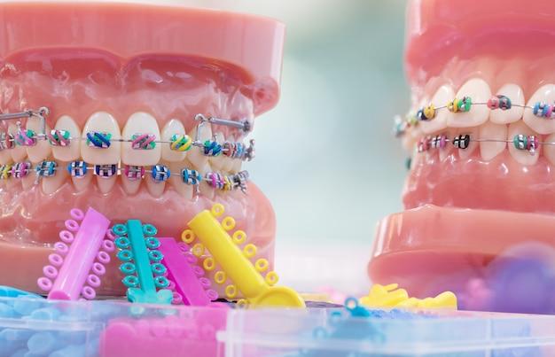 Orthodontisch model en tandartsgereedschap - demonstratietandenmodel van verschillende orthodontische beugels of beugels