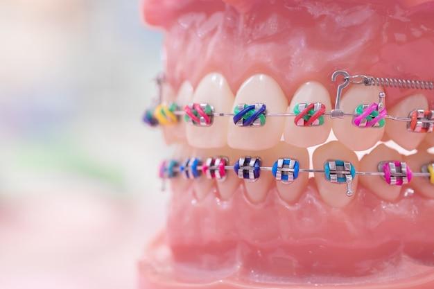 Orthodontisch model en tandartshulpmiddel - demonstratietandenmodel van variëteiten van orthodontie