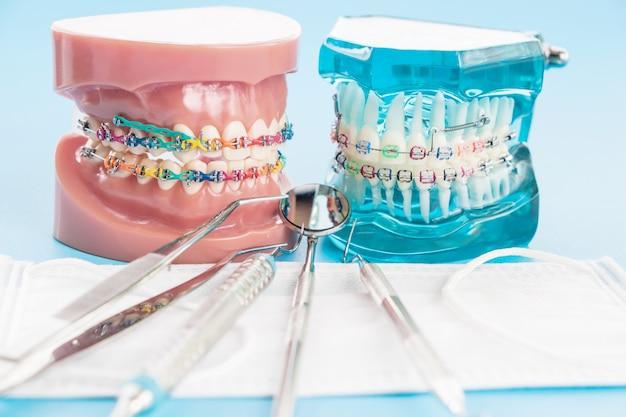 Orthodontisch model en tandartshulpmiddel - demonstratietandenmodel van variëteiten van orthodontische beugel of beugel