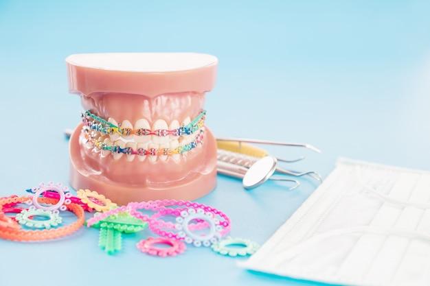 Orthodontisch model en tandartshulpmiddel - demonstratietandenmodel van variteiten van orthodontische steun of steun