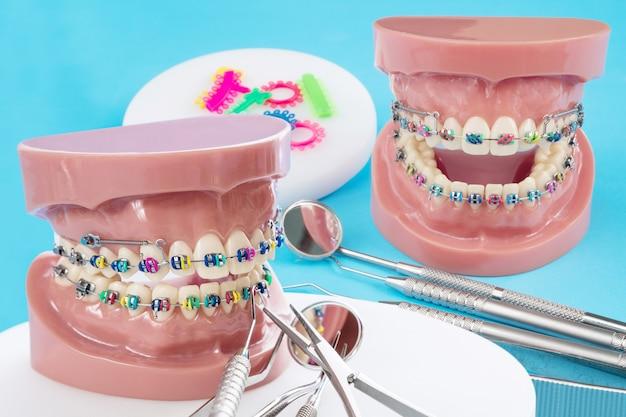 Orthodontisch model en tandartshulpmiddel - demonstratietandenmodel van verschillende orthodontische beugel of beugel