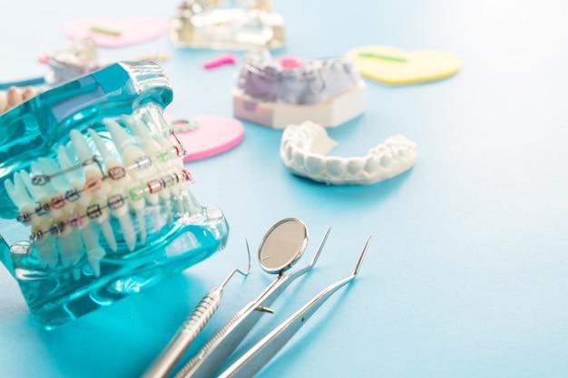 Orthodontisch model en tandartshulpmiddel - het model van demonstratietanden