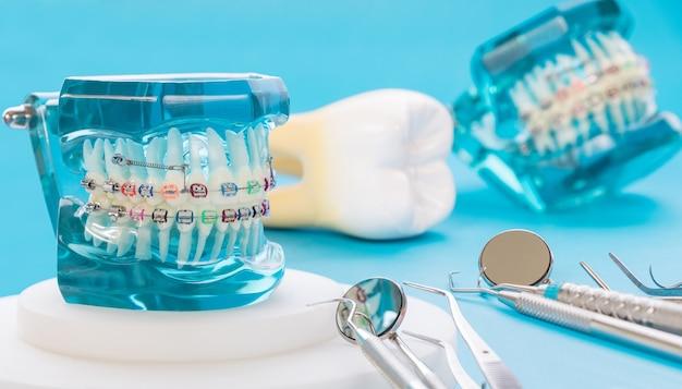 Orthodontisch model en tandartshulpmiddel